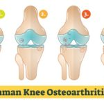 No Surgery for Your Knees